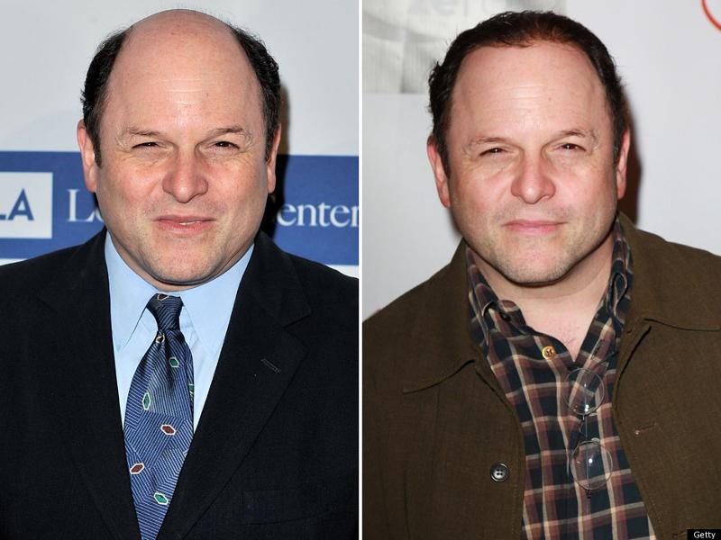 Jason Alexander Before and After Non-Surgical Hair Replacement