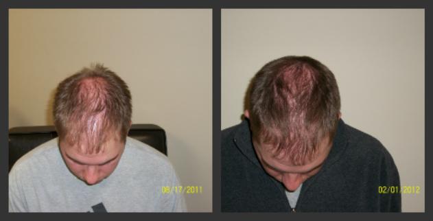 12 - 18 months of laser