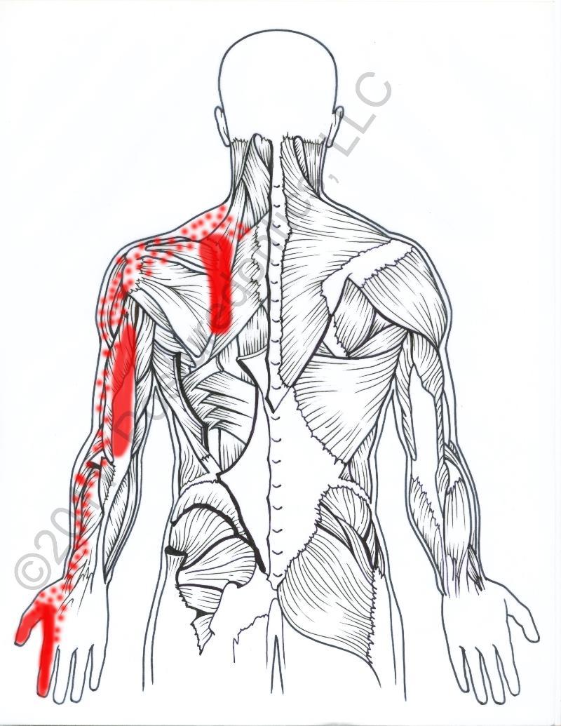 Dental Ergonomic Newsletter #11 - Upper Back Pain