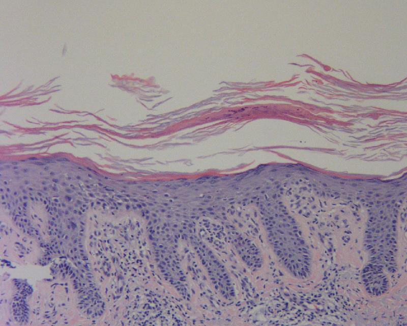epidermolytic hyperkeratosis