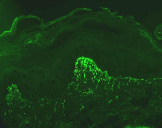 Dermatitis herpetiformis_clin1
