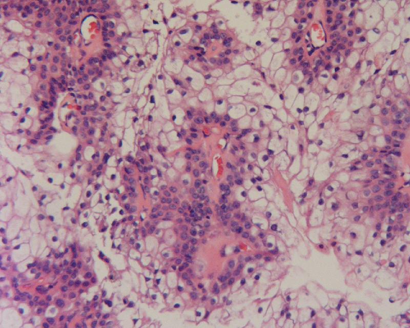Hidradenoma Clear Cell