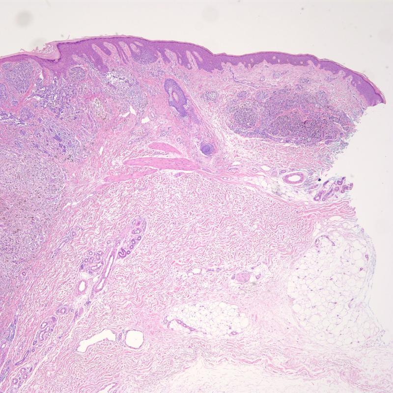 Melanoma with satellite lesion