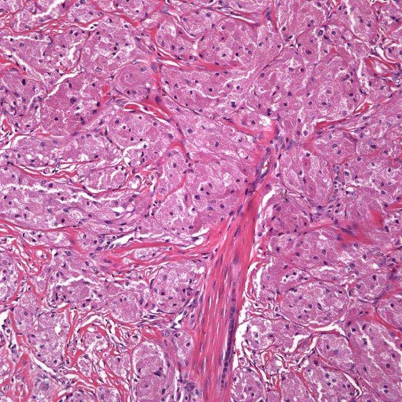 Granular Cell Tumor