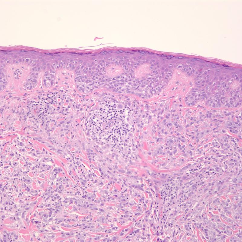 Melanoma, Amelanotic