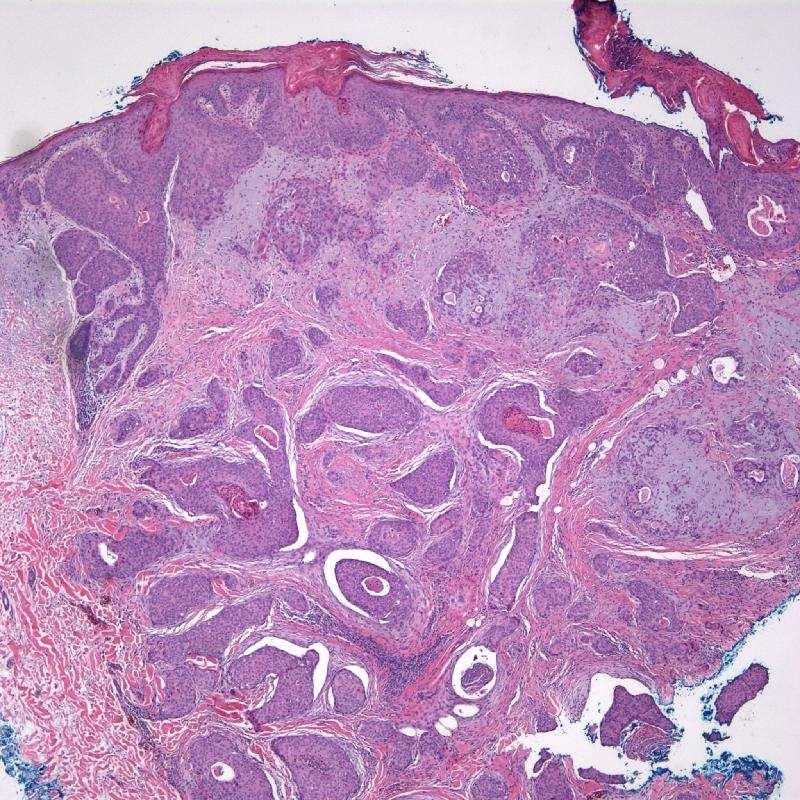 Eccrine Porocarcinoma