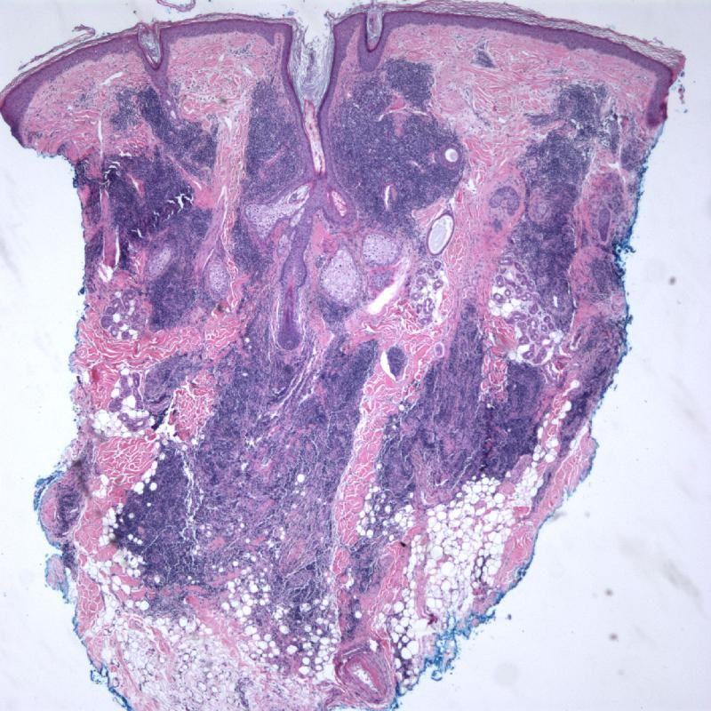 dle_with_vasculitis