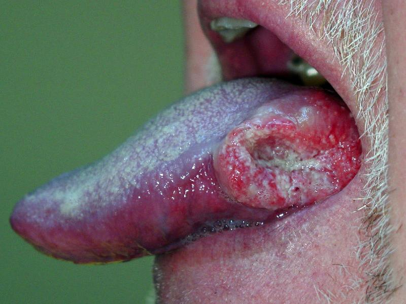 Oral Cancer Clin1
