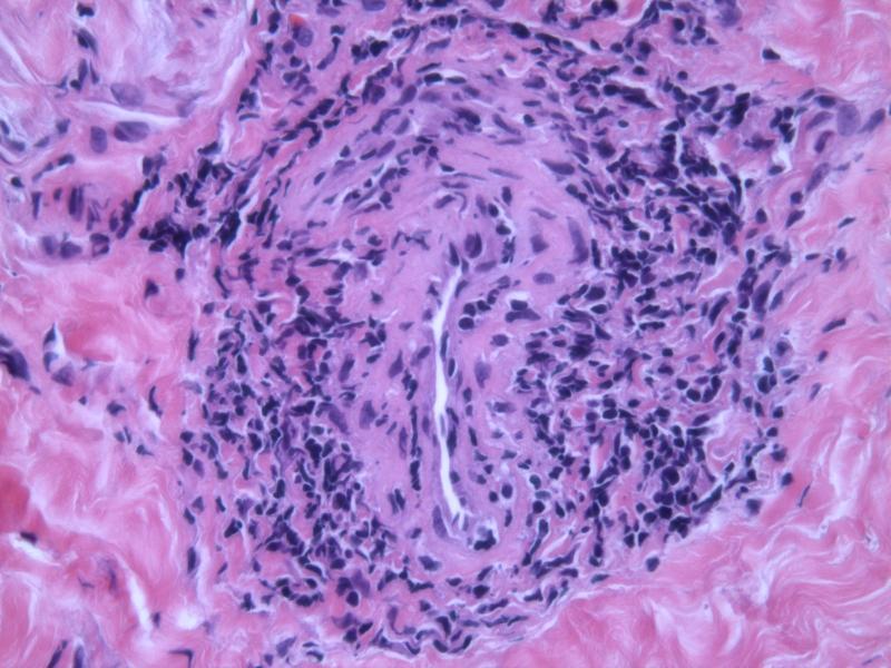 Lymphocytic Vasculitis