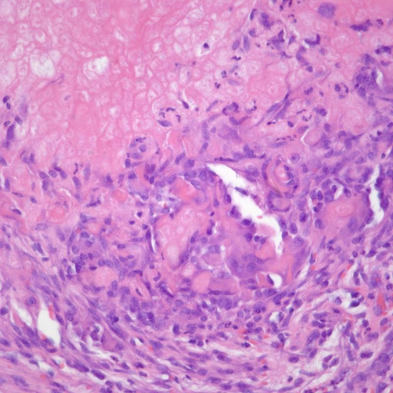 Pilomatrix carcinoma