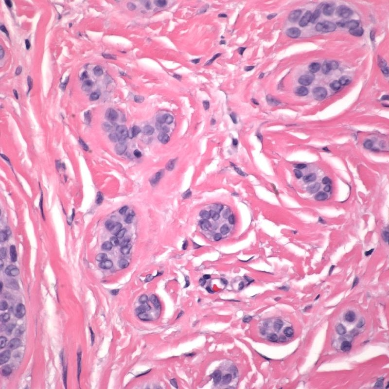 Basal Cell Carcinoma Morpheaform type