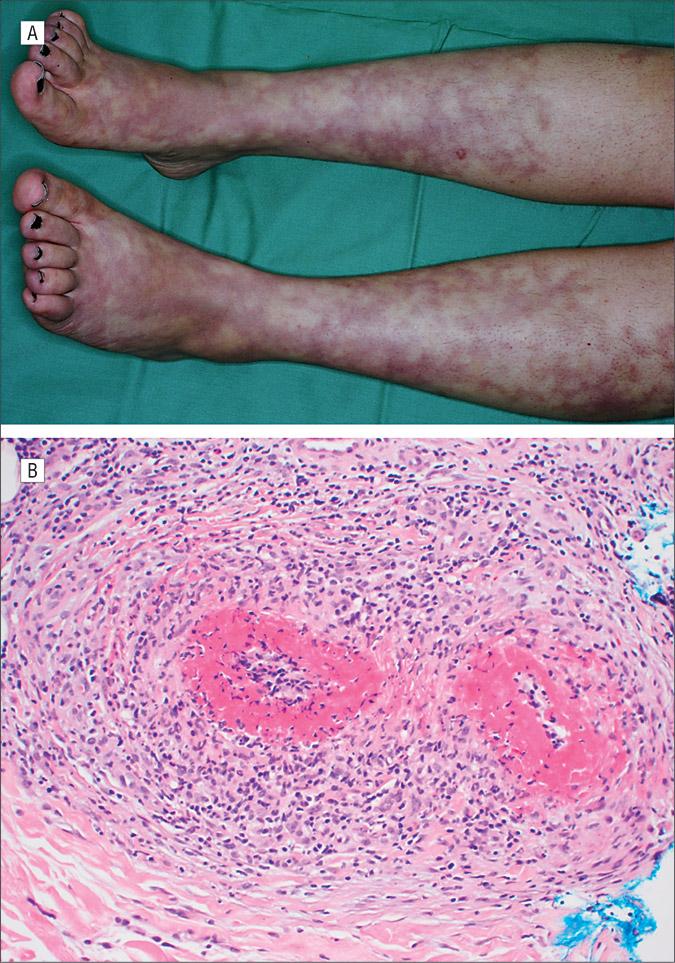 Lymphocytic Thrombophilic Arteritis