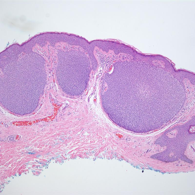 Hidroacanthoma simplex