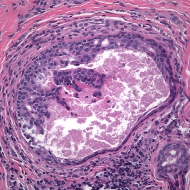 Papillary Eccrine Adenoma