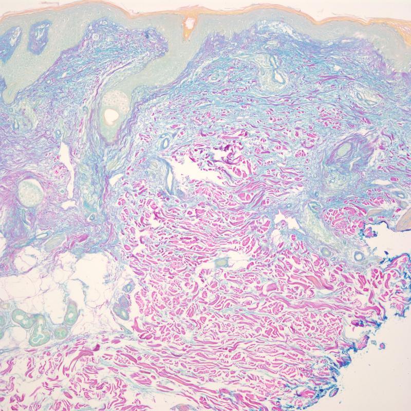 Dermatomyositis-colloidal iron