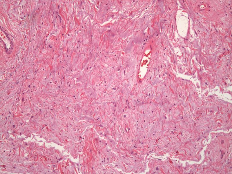Desmoplastic Fibroblastoma
