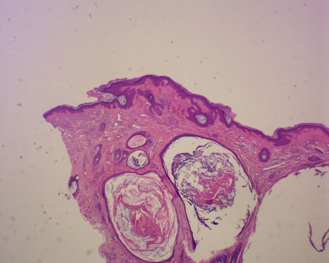 Favre-Racouchot disease