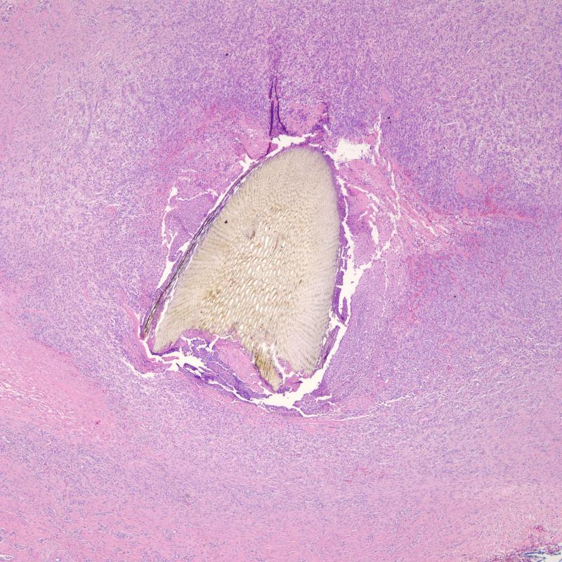 Granuloma Foreign Body