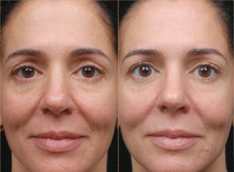Tretinoin before after wrinkles / Avis zoloft 25