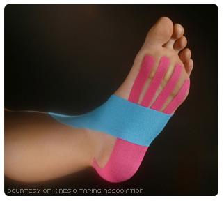 Kinesio Taped Foot