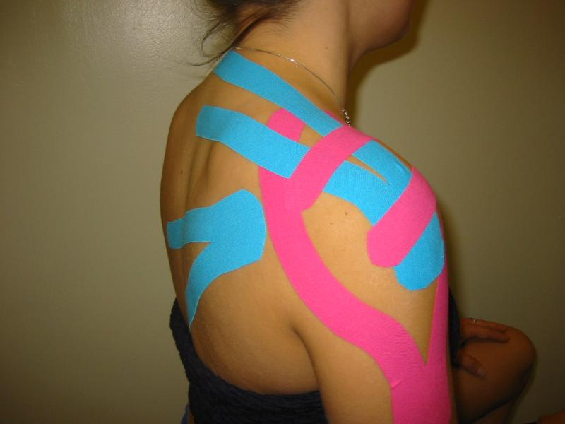 Kinesio Taped Shoulder-Arm-Back