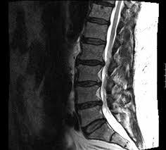 low back MRI