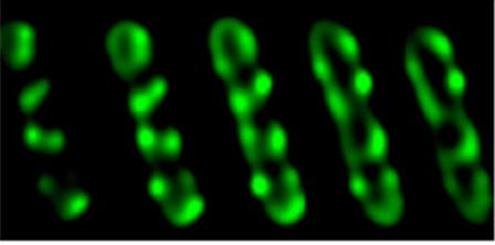 Optical sections through a bacterial cell