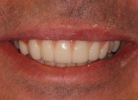 Temporary smile