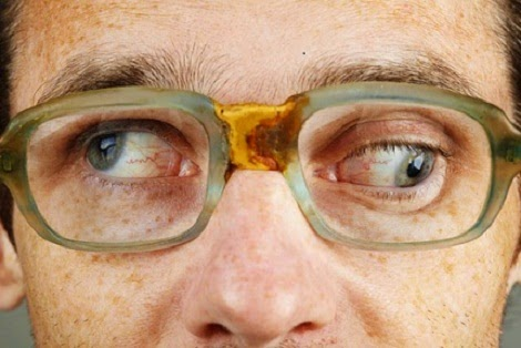 Causes of nystagmus in adults