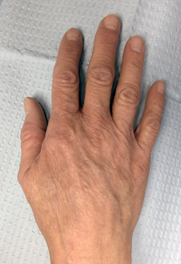 right hand after treatment
