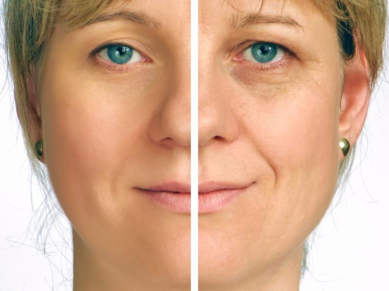 Juvederm Before-After