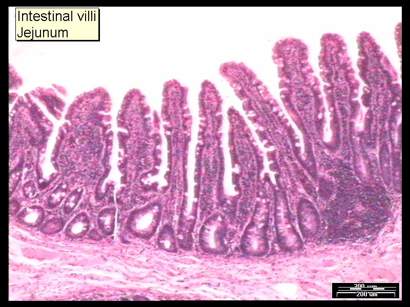 Intestinal Villi Small Intense Npoesel3rd2014
