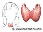 Hypothyroidism Image