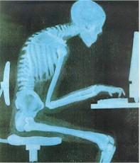 skeleton slouch