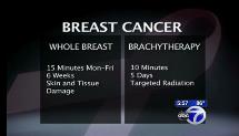 Brachytherapy video