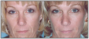 Radiesse female face before and after