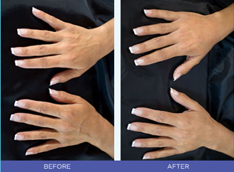 Radiesse female hands before and after