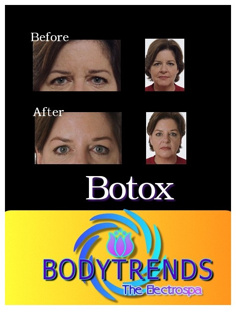 Younger, fresher Appearance with Botox/BodyTrends