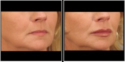 Lip augmentation with Dermal filler