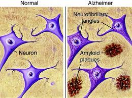 Plaques Alzheimers