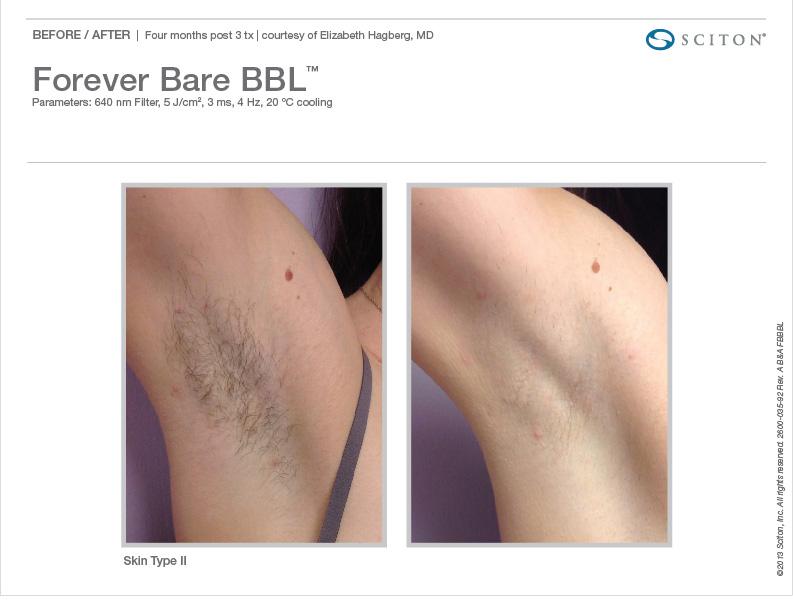 Full Bikini Laser Hair Removal