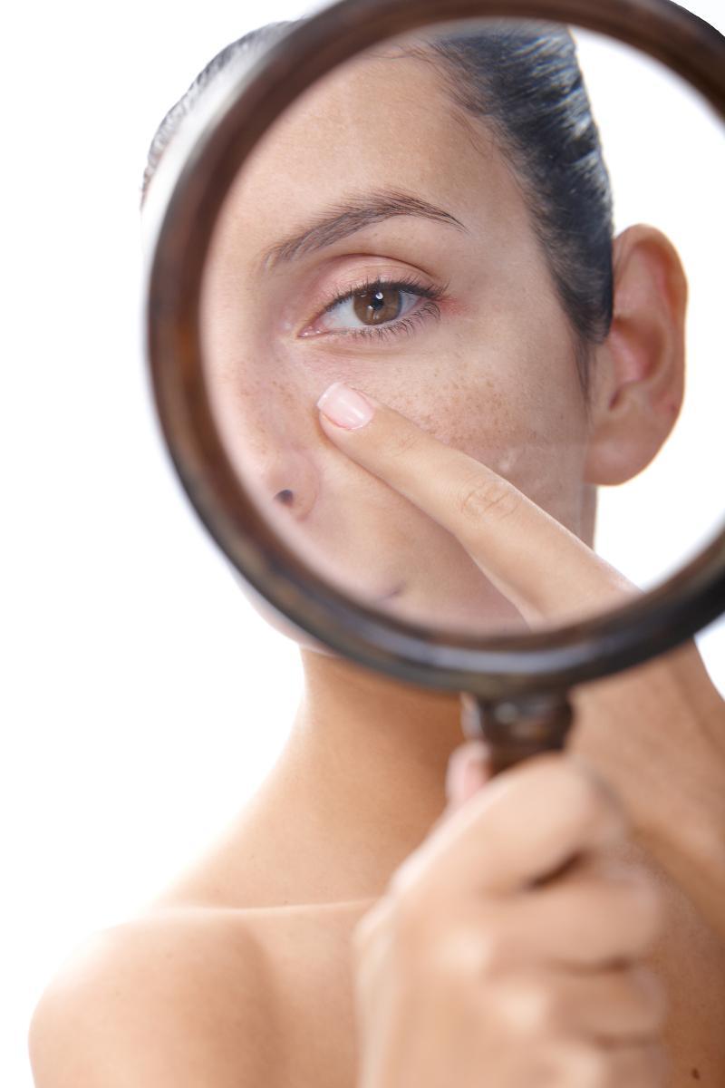 Blanchir la personne de la pigmentation