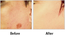 Pigmented Skin Before & After