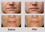 Dysport & Restylane Before & After Photos