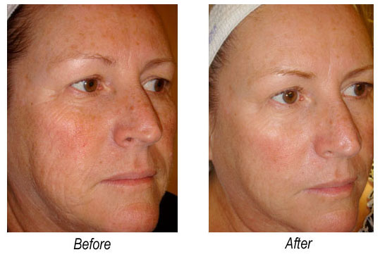 DermaSweep Before & After Photos