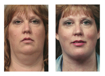 The Laser Neck Lift