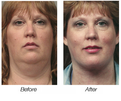 Laser Neck Lift Before & After