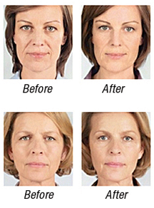 Sculptra Before & After Photos