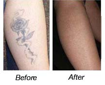 Tattoos Before & After