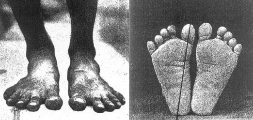 natural feet